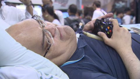 pkg darlington brazil 43 years inside polio ward pt2_00013816.jpg