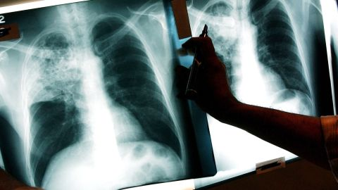A doctor examines the x-rays of a tuberculosis (TB) patient at a TB clinic Novmeber 27, 2002, in Brooklyn, New York. (Photo by Spencer Platt/Getty Images)