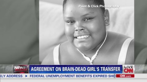 exp brain dead girl_00002217.jpg