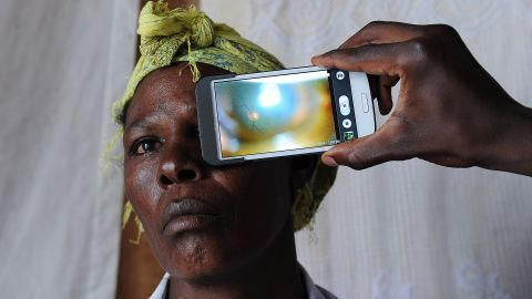 A technician scanning the eye of a woman with a smartphone application in rural Kenya.