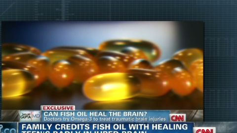 ac gupta omega 3 help for brain injuries_00015918.jpg