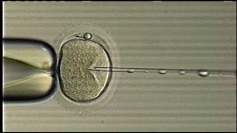 dnt sperm switch ferility clinic_00001405.jpg