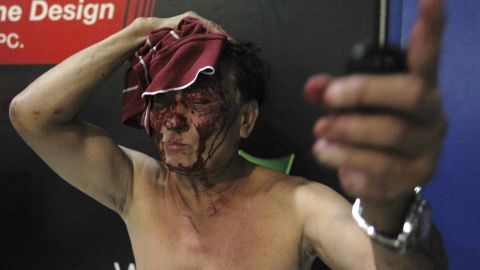 An injured man gestures after fleeing from the gun shots.