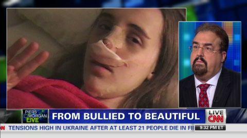 pmt intv romo plastic surgery bullied kids_00011617.jpg