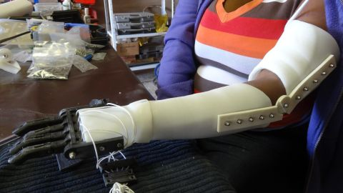 Body parts such as knuckles and joints are printed from the the thermoplastic material Polylactide (PLA), and are combined with stainless steel and aluminum to produce a personalized prosthetic.