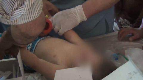 syria chemical weapons allegations sidner pkg_00000827.jpg