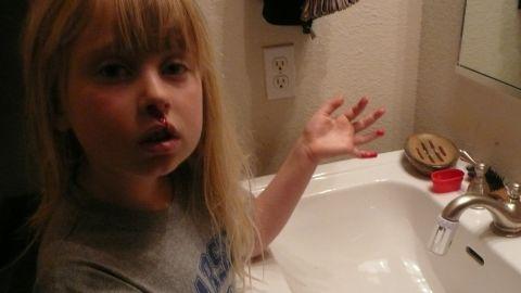 Lisa Parr's daughter, Emma, suffered from nosebleeds.