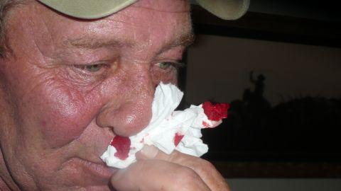 Lisa husband's, Bob, suffered from similar symptoms.