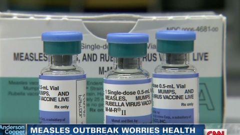 ac dnt elam Measles outbreak _00012313.jpg