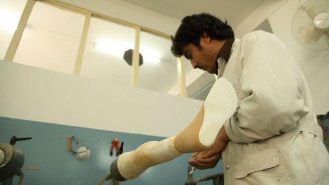pkg coren afghanistan prosthesis_00013418.jpg
