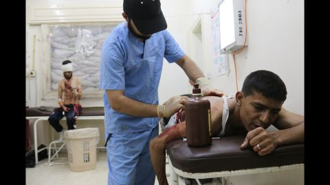 A wounded man is treated at a makeshift hospital in Aleppo on Sunday, May 4.