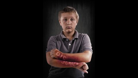In his project about the invisible pain caused by bullying, photographer Rich Johnson had professional makeup artists simulate injuries on children's bodies. The wounds feature a hurtful word -- a word chosen by the participants and their parents.