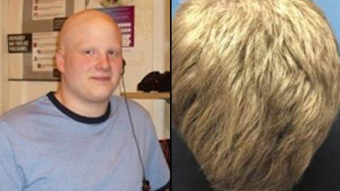Kyle Rhodes had a full head of hair after eight months when he began using an arthritis drug to treat his alopecia areata.