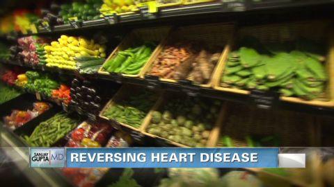 sgmd gupta reversing heart disease_00000920.jpg