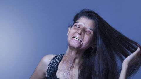 Ritu lost vision in her left eye 15 days after she was attacked.