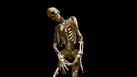 The Skeleton of Harry Eastlack, Fibrodysplasia Ossificans Progressiva (FOP) Evi Numen, 2011, for the Mütter Museum of The College of Physicians of Philadelphia