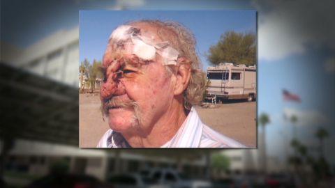 pkg griffin veteran laird nose va hospital_00023706.jpg