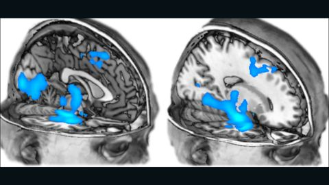 Researchers at Imperial College London also previously scanned the brain to see the effects of MDMA. Their findings hint that the drug might be useful in the treatment of anxiety and post-traumatic stress disorder.