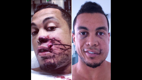 """Giancarlo Stanton, an All-Star baseball player with the Miami Marlins, <a href=""""http://instagram.com/p/tA6J_NQ6lg/"""" target=""""_blank"""" target=""""_blank"""">posted photos of himself</a> after a pitch hit him in the face Thursday, September 11, in Milwaukee. """"Making huge progress!!"""" he wrote on Instagram. """"Want to thank everyone who has played a part in my recovery process. Your kind messages, thoughts & prayers have meant the world to me."""""""