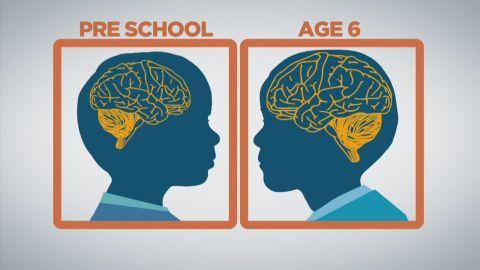 sgmd gupta baby brain development_00004614.jpg