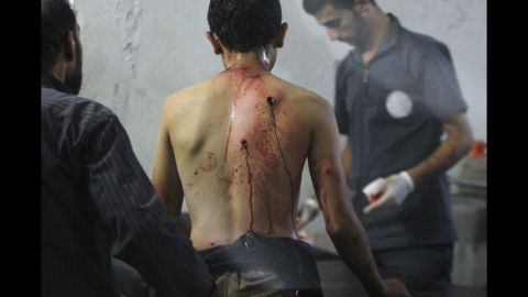 Medics at a field hospital in Douma, Syria, attend to a man who was injured in what activists said were two airstrikes carried out by forces loyal to Syrian President Bashar al-Assad on Saturday, September 20.
