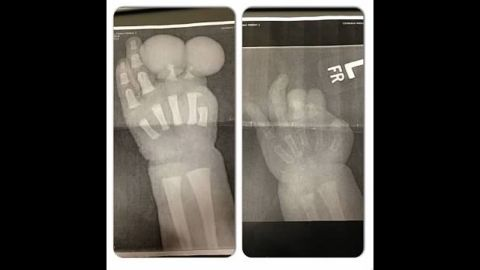 Amniotic band syndrome caused the thumb on Colson's left hand to be severed. His first and second fingers were the size of golf balls.
