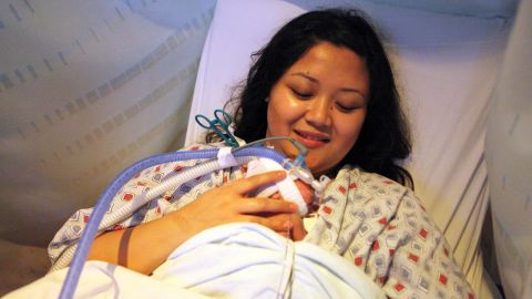 Julie Chung participates in a kangaroo care session, which means her son Ian lies -- tubes and all -- skin-to-skin on his mother's chest for at least an hour. In this photo, Ian is almost 7 weeks old, and weighs a little more than 2 pounds.