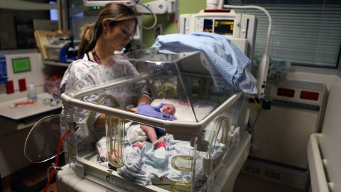 Babies treated in the Small Baby Unit at Children's Hospital of Orange County are born before 28 weeks or weigh less than 2.2 pounds.