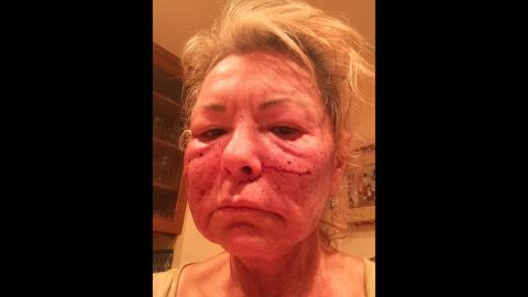 """""""Got a chemical peel to look more sexier,"""" <a href=""""https://twitter.com/therealroseanne/status/537510206062612480"""" target=""""_blank"""" target=""""_blank"""">tweeted</a> comedian Roseanne Barr on Tuesday, November 25. """"Joked about tussling Cosby."""""""