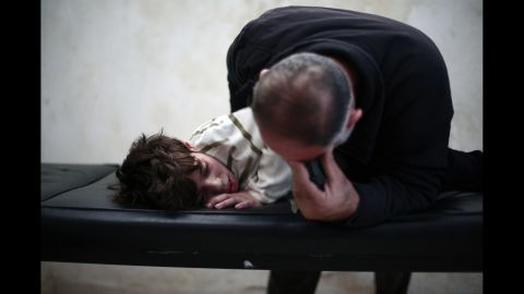 A father cries over his son at a physical therapy center in Eastern al-Ghouta outside Damascus on Thursday, November 6. The boy had his leg tendons cut after he was injured in an airstrike four months before.