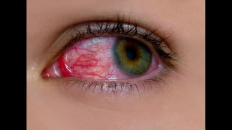 Childhood uveitis is a rare disease that can cause blindness if not treated early.