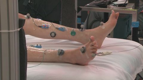 A paralyzed man moves legs with the help of a new technique that shows great promise.