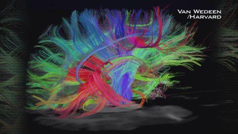 exp GPS Moonshots Brain SOT_00003617.jpg