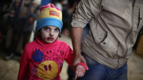 A wounded child walks at a makeshift hospital in the besieged rebel-held town of Douma after being injured in a reported airstrike by government forces on December 23. Douma, a rebel bastion northeast of the Damascus, has been under government siege for more than a year, with residents facing dwindling food and medical supplies.