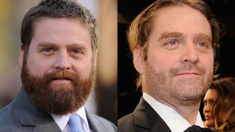 """The transformation of Zach Galifianakis continued at the Screen Actors Guild Awards in January 2015, where the actor was barely recognizable from years past. What a difference some pounds and some facial hair can make. He first started slimming down in 2013, <a href=""""http://teamcoco.com/video/zach-galifianakis-drinking"""" target=""""_blank"""" target=""""_blank"""">when he decided to stop drinking. </a>"""