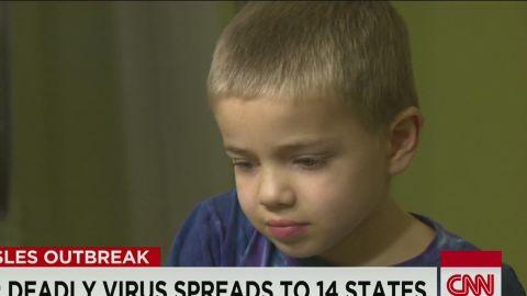erin dnt simon measles dad leukemia school ban_00000403.jpg