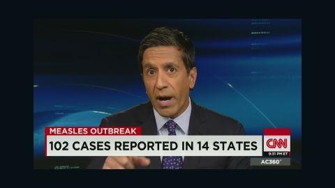 ac sot sanjay measles questions_00025814.jpg