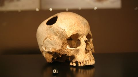 Trepanation -- the practice of cutting a hole in the skull -- was performed using obsidian tools by Neolithic cultures, although its purpose remains unknown. This skull in Lausanne Museum, in France, shows signs of bone regrowth, meaning the patient survived the operation.