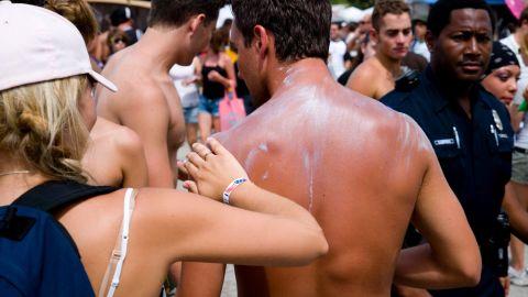 A girl applying suntan cream to the back of a sunburned man in Miami, Florida.