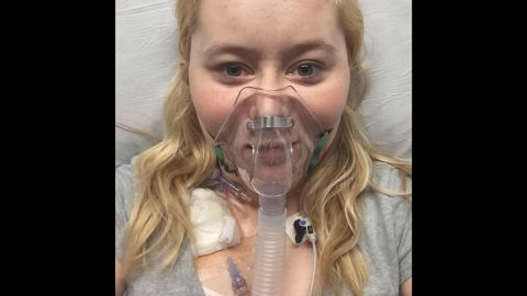 After months apart from Dalton, Katie found out she would receive a lifesaving lung transplant. She was able to briefly reunite with her husband afterward. She died at her home in Kentucky on September 22. She was 26.