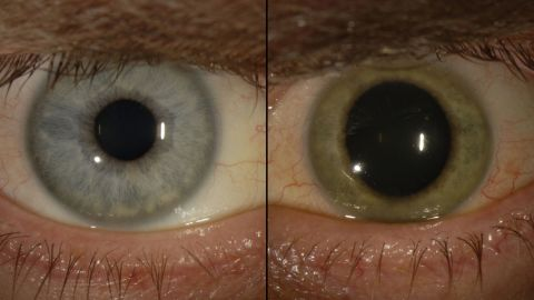 When the Ebola virus was found in Dr. Ian Crozier's eye, the eye started losing its original blue hue, he told the New York Times.
