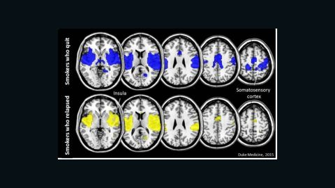 The brains of smokers who successfully quit have more connectivity in an area called the insula (in blue) than those of smokers who relapse (in yellow).