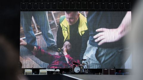 """Foo Fighters' Dave Grohl is pictured on a big screen talking into a microphone after falling from the stage and breaking his leg during the band's concert at Nya Ullevi in Gothenburg, Sweden, Friday, June 12. Grohl fell off the stage while performing """"Monkey Wrench,"""" the band's second song of the evening. Grohl left the stage and later finished the show from a chair."""