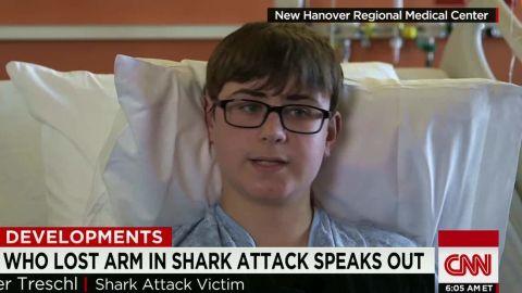 shark attack victim speaks dnt pereira newday_00001506.jpg