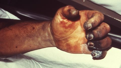 A patient presented with symptoms of plague that included gangrene of the right hand causing necrosis of the fingers. In this case, the presence of systemically disseminated plague bacteria Y. pestis, i.e. septicemia, predisposed this patient to abnormal coagulation within the blood vessels of his fingers, including sloughing of the skin.