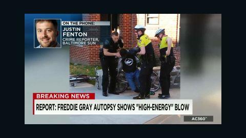 freddie gray autopsy fenton sot ac_00001107.jpg