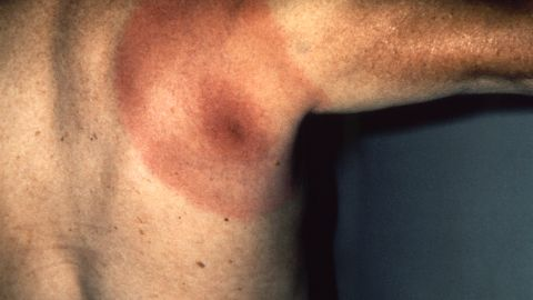 A tick bite's telltale bull's-eye rash.