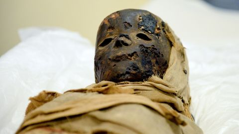 An ancient Egyptian child mummy is prepared for a computer tomographic scan in Hildesheim, Germany.