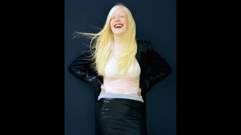"""Meeting Christine changed Guidotti's life. """"The first person I photographed with albinism, featured in Life magazine."""" After meeting Christine, Guidotti sought to bring about change with his photography."""