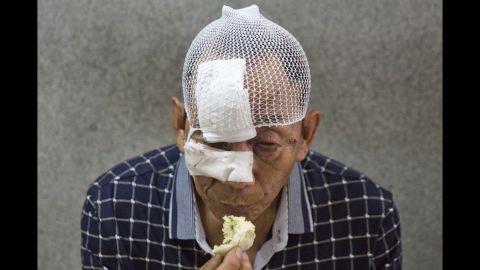 A bandaged man eats in a hospital in Tianjin.
